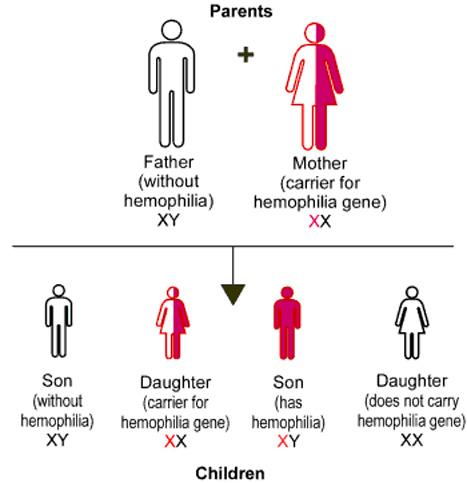 hemophilia a and b « ihtc, Cephalic Vein